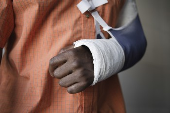 Broken bones are common after a motorcycle accident.