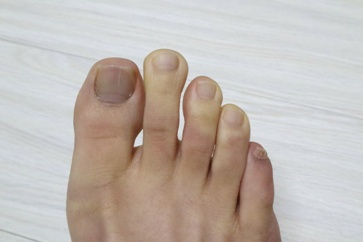 Cold Foot Suffering From Raynaud's Disease