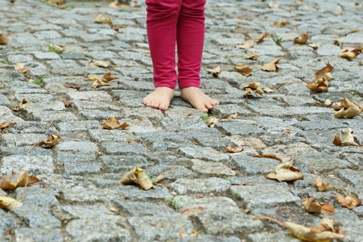 Child's Out-Toeing Feet