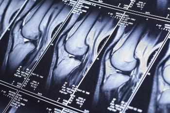 Get compensation after a car crash knee injury.