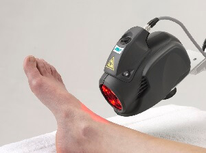 MLS laser treatment on foot