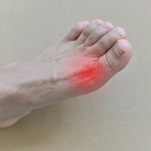 Foot with painful toe joint