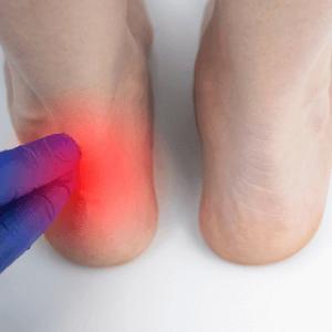 physician assessing back of heel