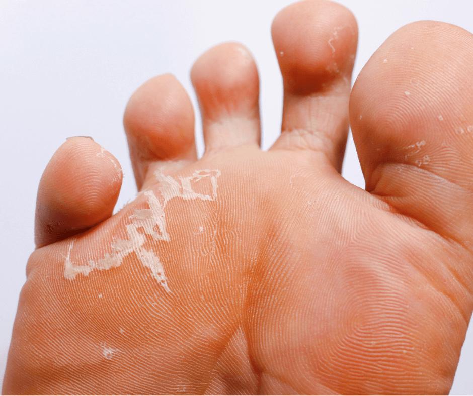 athlete's foot fungus