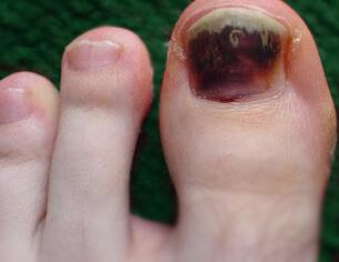 Black big toenail
