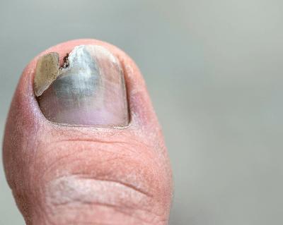 blackened toenail