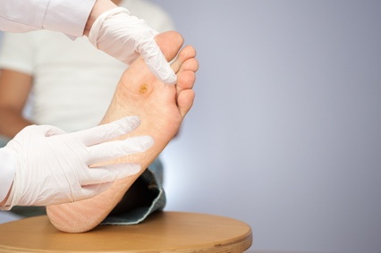 doctor examining foot with ulcer