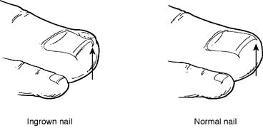 Comparison of ingrown toenail and normal toenail