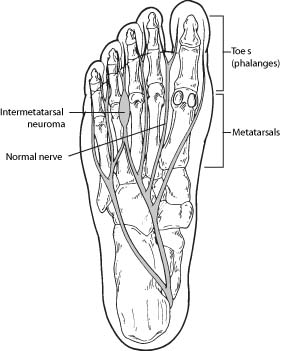 Picture of bones in foot explaining neuroma