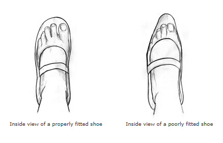 Properly fitted shoe vs. poorly fitted shoe