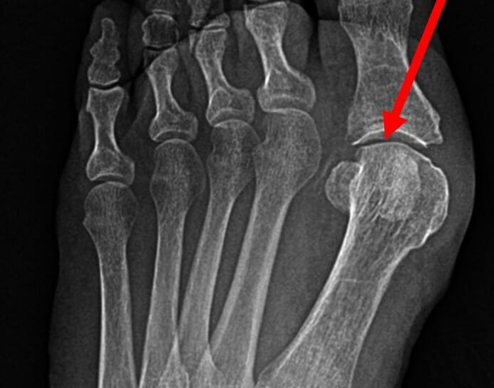X-ray of the foot