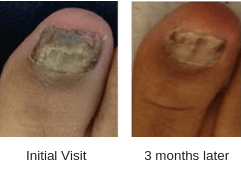 before and after photo of fungal toenails