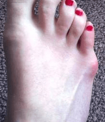 a right foot with a bump on outside of little toe