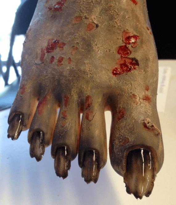 Zombie like feet