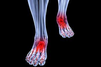 arthritic foot care