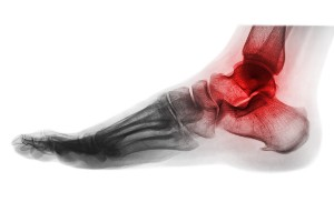 arthritis in the ankle