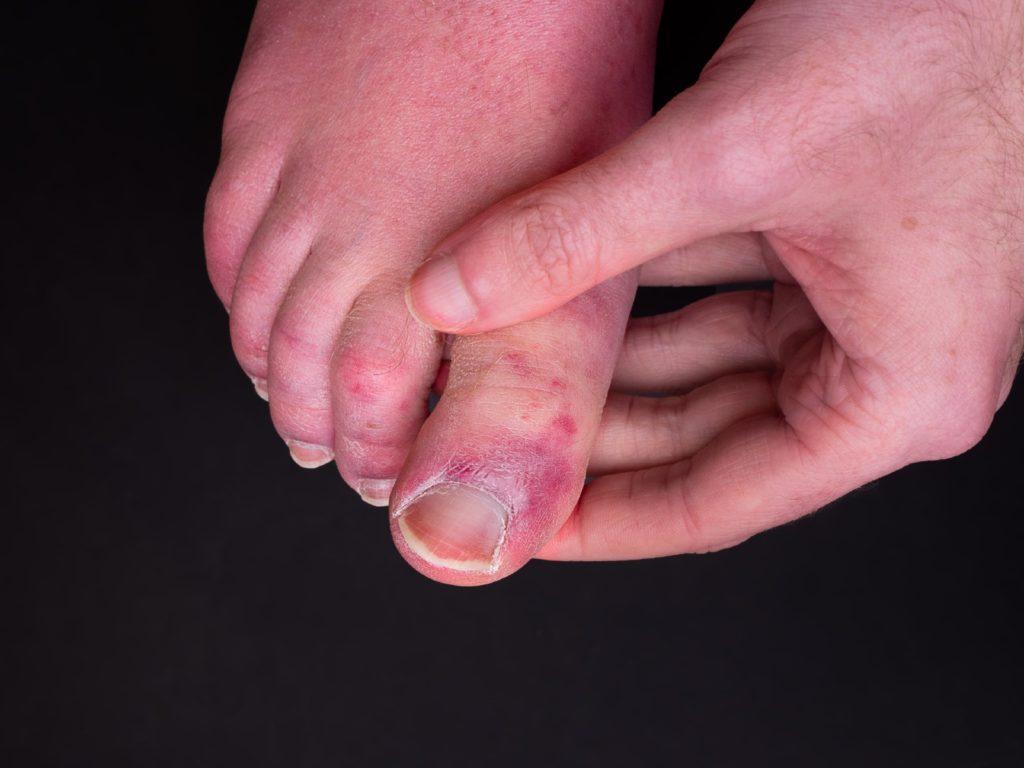 A look at COVID toe