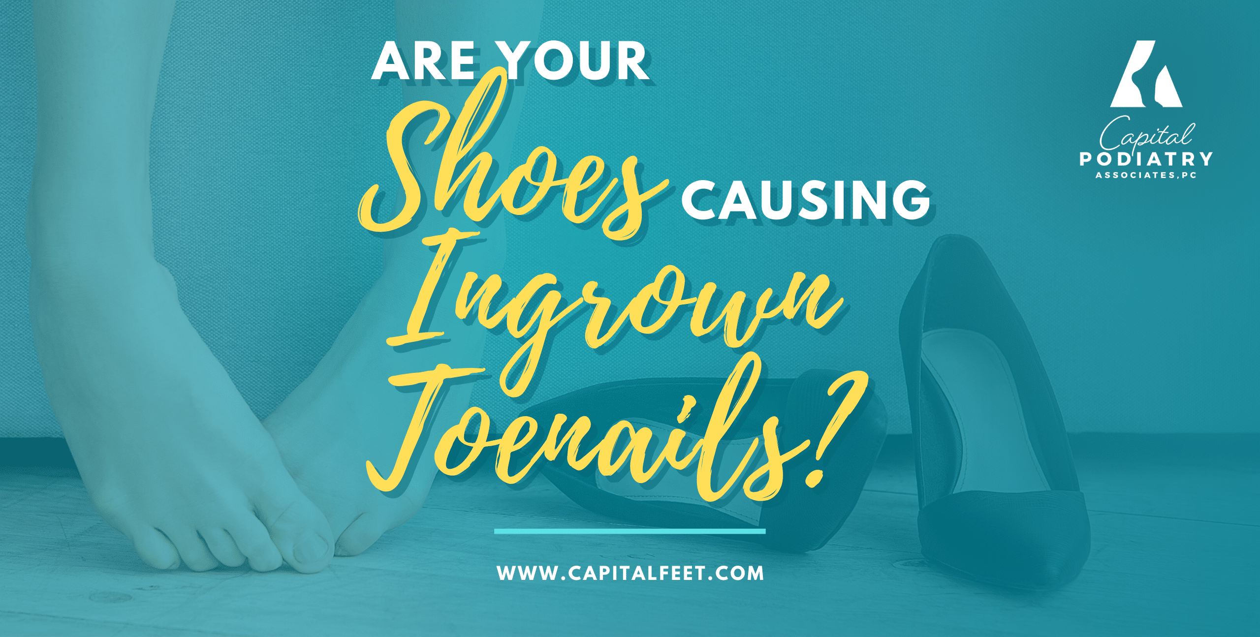 Are your shoes causing ingrown toenails?