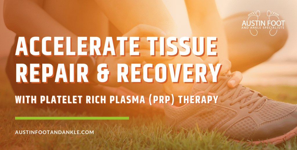 Advanced Treatment with Platelet Rich Plasma (PRP) Therapy