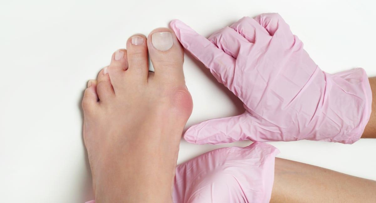 Bunions on woman's foot