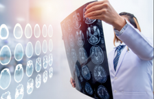 Brain Injuries in DC, Maryland, and Virginia