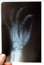 Surgery Technician Wins Big After Being Hurt At Work