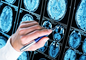 doctor examining brain scans showing epilepsy Gray & White