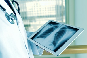 doctor looking at x-ray of chest and lungs