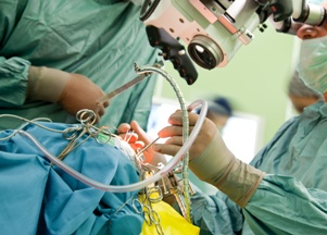 doctors performing brain surgery
