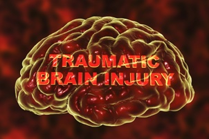 image of brain with the words traumatic brain injury