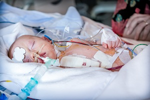 An infant is treated in the hospital for meningitis