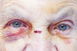 facial injuries nursing home abuse neglect