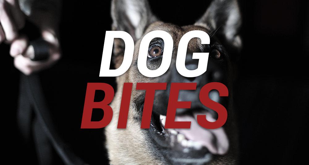 dog bites personality