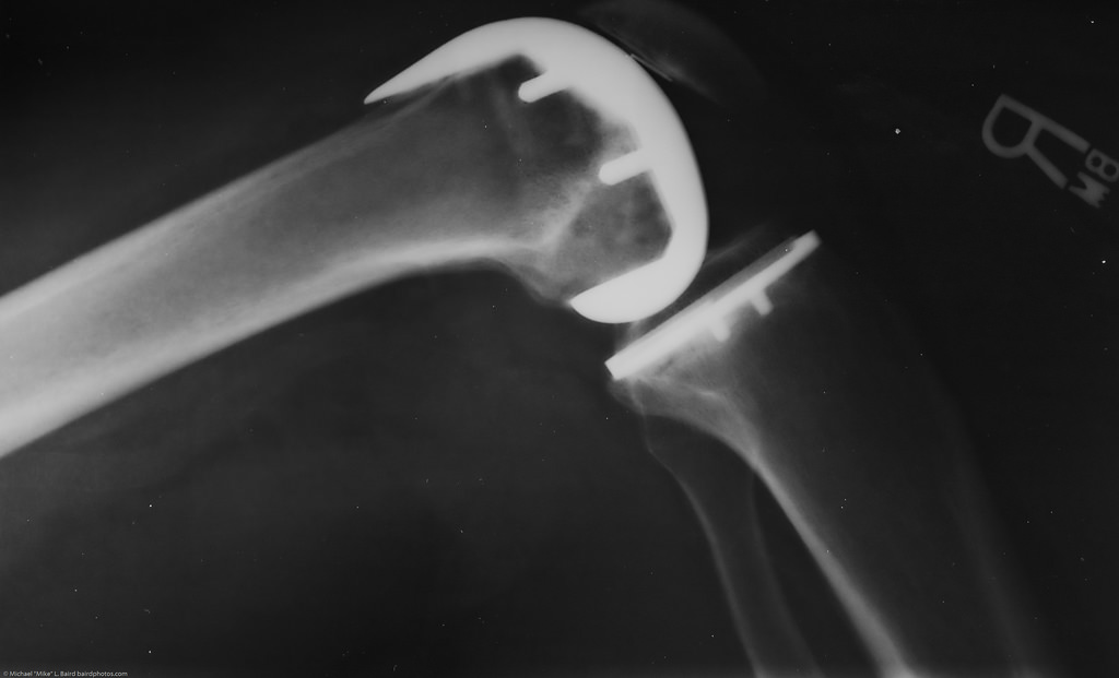depuy knee replacement lawyer