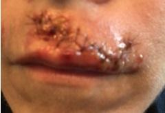 dog bite upper lip