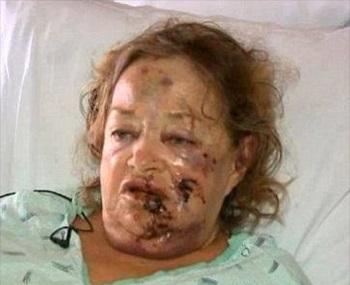 pit bull attack victim tacoma