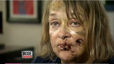 pitbull attack woman attorney