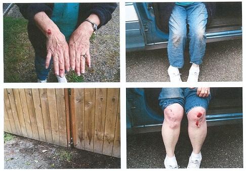 pitbull attack injuries lawyer