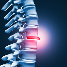 Herniated Disk Caused by a Car Wreck
