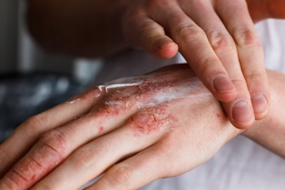 Severe Skin Conditions and Social Security Disability Benefits