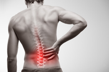 Chronic back pain may qualify you for disability benefits from Social Security.