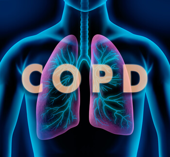 COPD may qualify you for Social Security disability benefits.