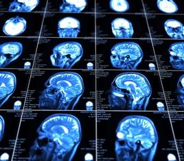 Brain Scan After a Traumatic Brain Injury