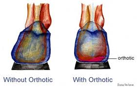 orthotic before and after