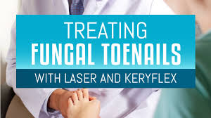 treating toenail fungus with laser