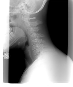 Cervical Strain x-ray