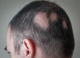 Taxotere Alopecia