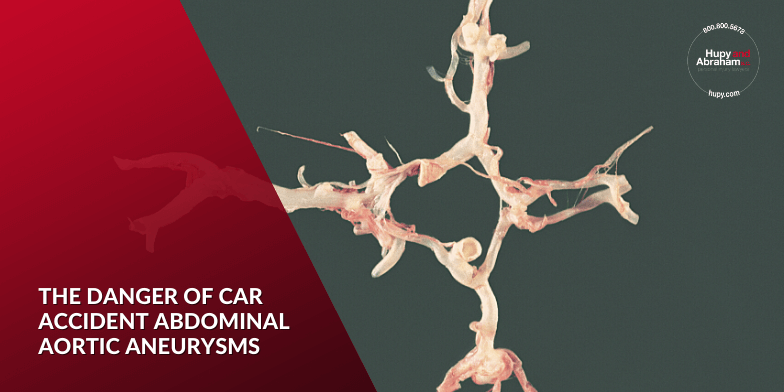 The Danger of Car Accident Abdominal Aortic Aneurysms