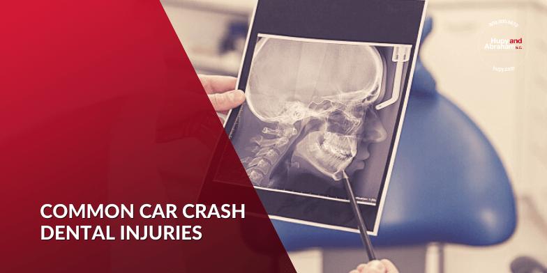 dental injury from a car crash.