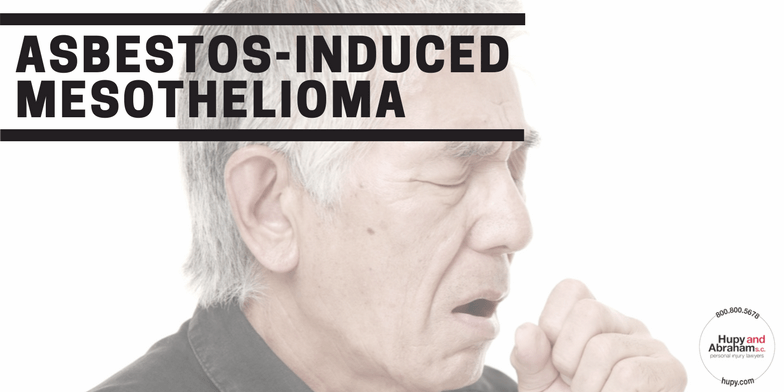 Image Representing What You Need to Know About Asbestos-Induced Mesothelioma